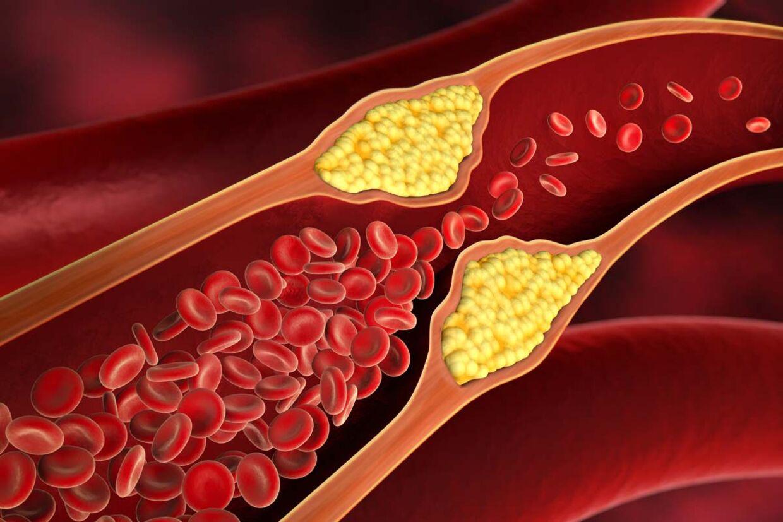 sænk dit kolesteroltal