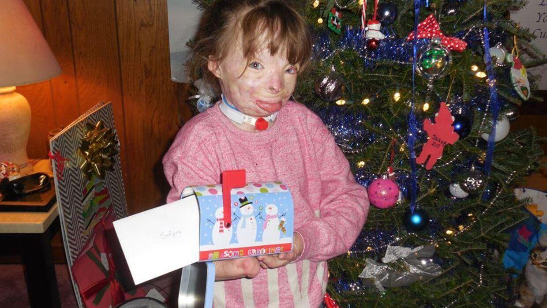 Mere en hundredetusinde følger Safyre Terry på Facebook via siden 'Safyre Schenectady's Super Survivor'. Her kan omverdenen følge den lille piges kamp for et normalt liv. Her er hun fotograferet med nogle af de mange ting, hun har modtaget.