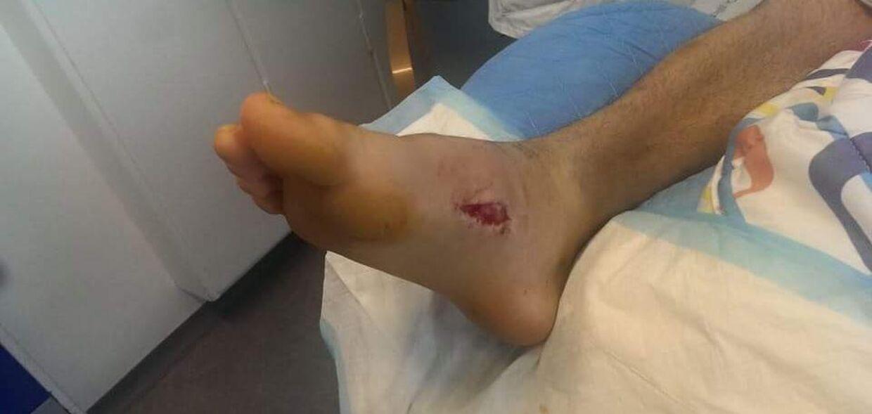 Niclas Larsen fik en stafylokok-infektion i foden, som var tæt på at koste ham amputation og en ødelagt karriere som kickboxer. Heldigvis blev han rask igen, og nu er målet et VM-bælte i den krævende sportsgren.