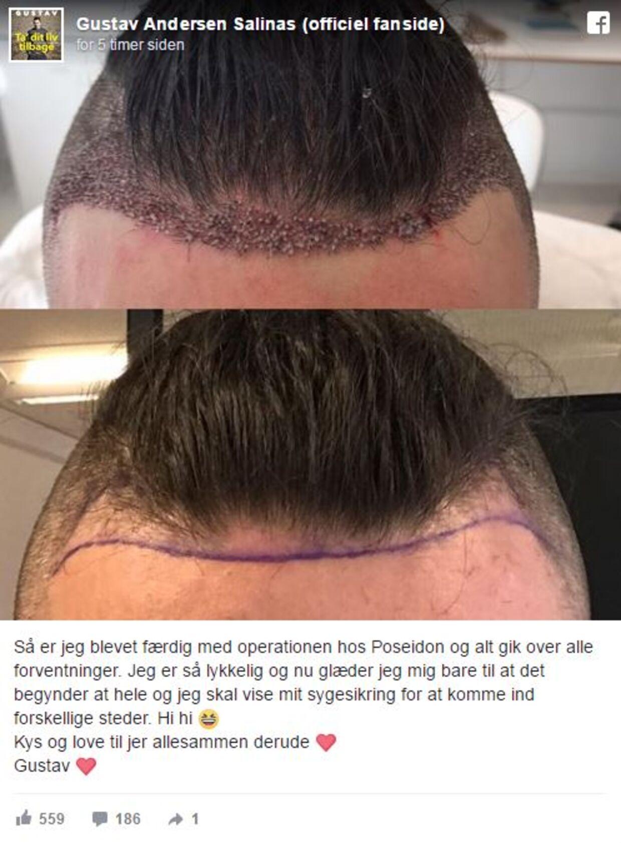 hårtransplantation danmark