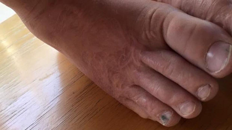 Sådan ser Jakobs fødder ud i dag - 4 år efter ulykken.