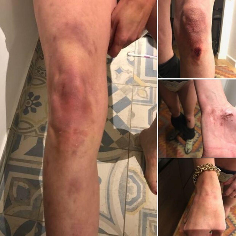 Disse billeder lagde Maria Hirse ud på sin Facebook-profil som dokumentation for, hvad gårdejeren skulle have udsat hende for mandag aften.