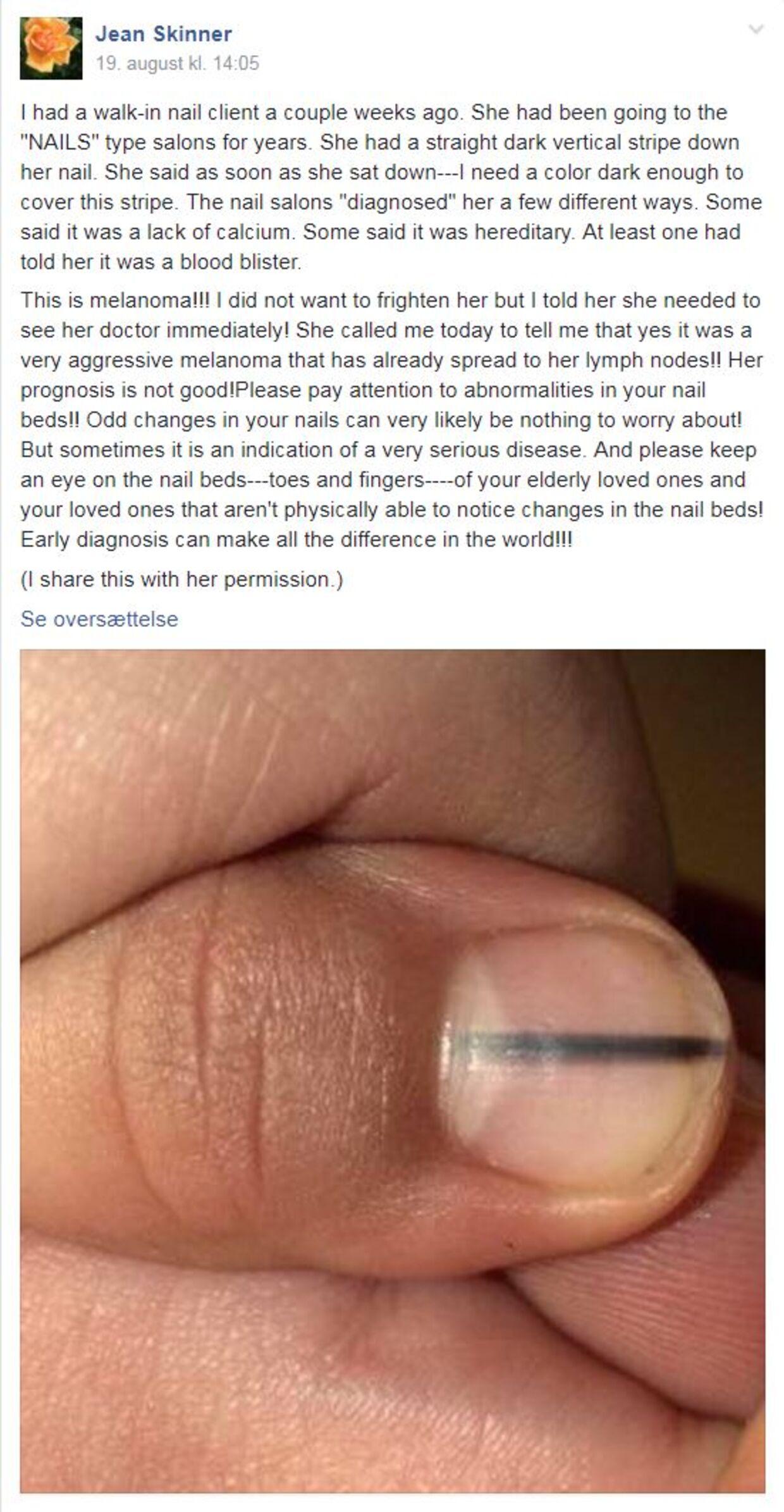 kræft i neglen