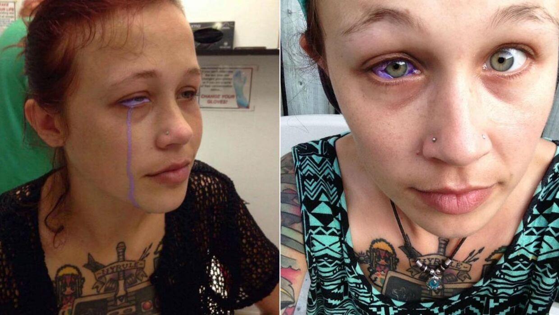 tatovering i øjet
