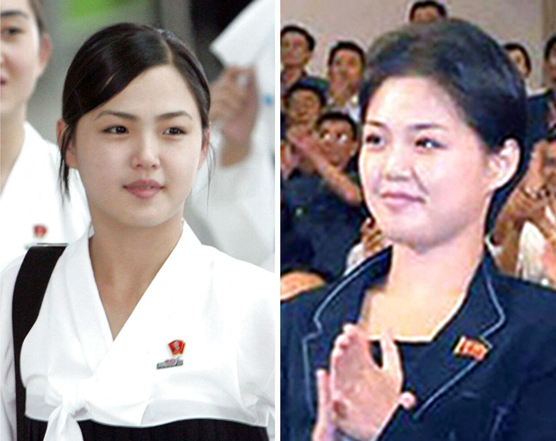 Nordkoreas førstedame før og efter. Billedet til venstre er fra 2005, hvor Ri Sol-ju var i Sydkorea som leder af landets cheerleader-hold, mens billedet til højre er et af de første, Nordkoreanske medier publicerede.