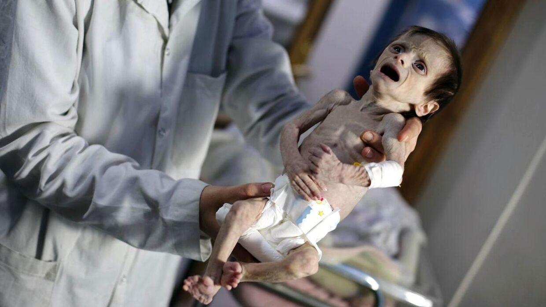 Billedet af et syrisk spædbarn er gået viralt. Det stærke foto er taget på en klinik i byen Hamouria i Syriens Ghouta-region udenfor Damaskus. Byen er kontrolleret af oprørere, der kæmper imod terrorgruppen Islamisk Stat.