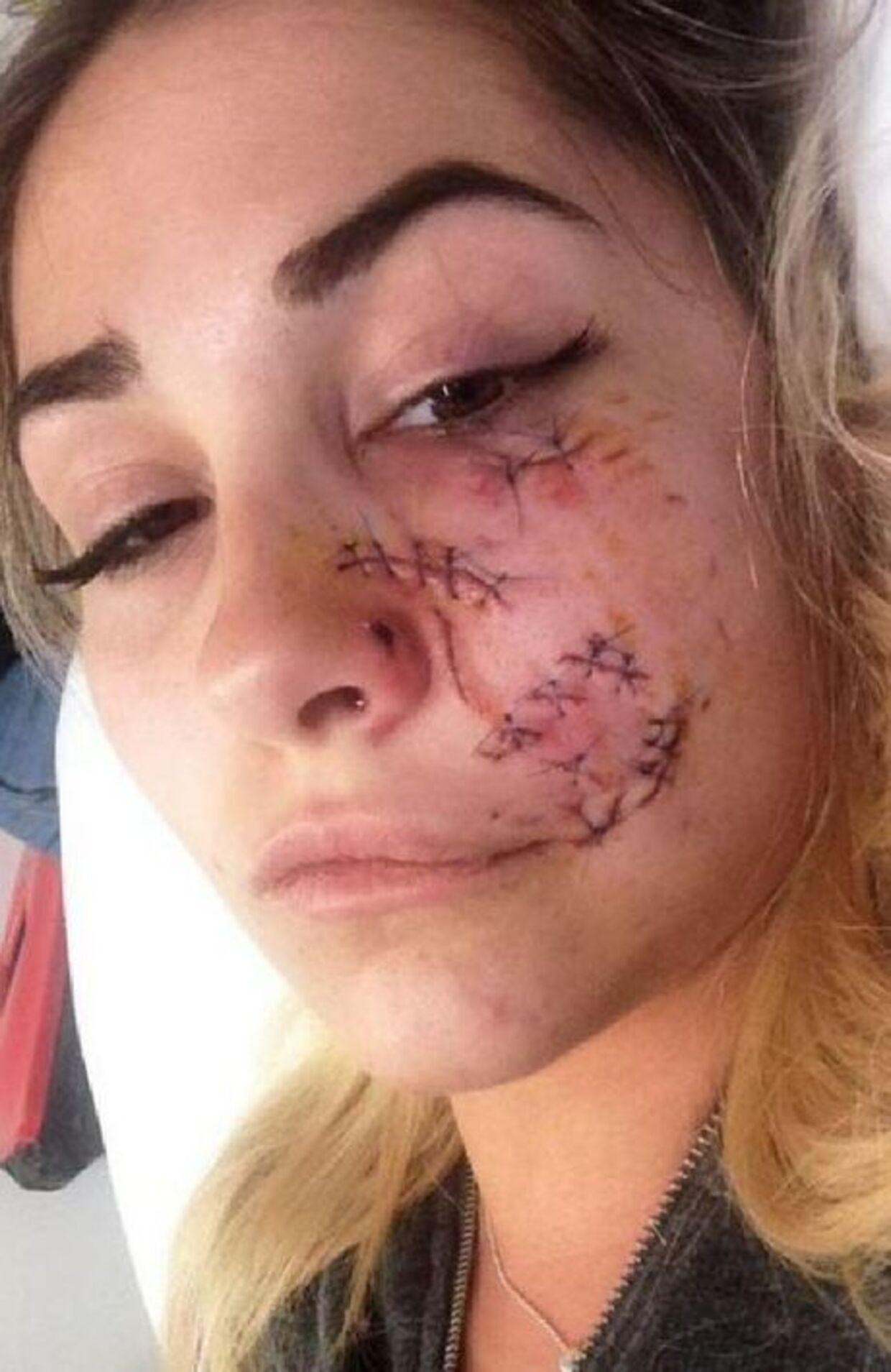 Det så temmeligt voldsomt ud efter hunden gik amok på hendes ansigt.