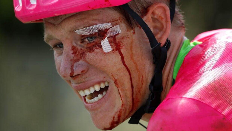 Lawson Craddock kom i mål med smerter.
