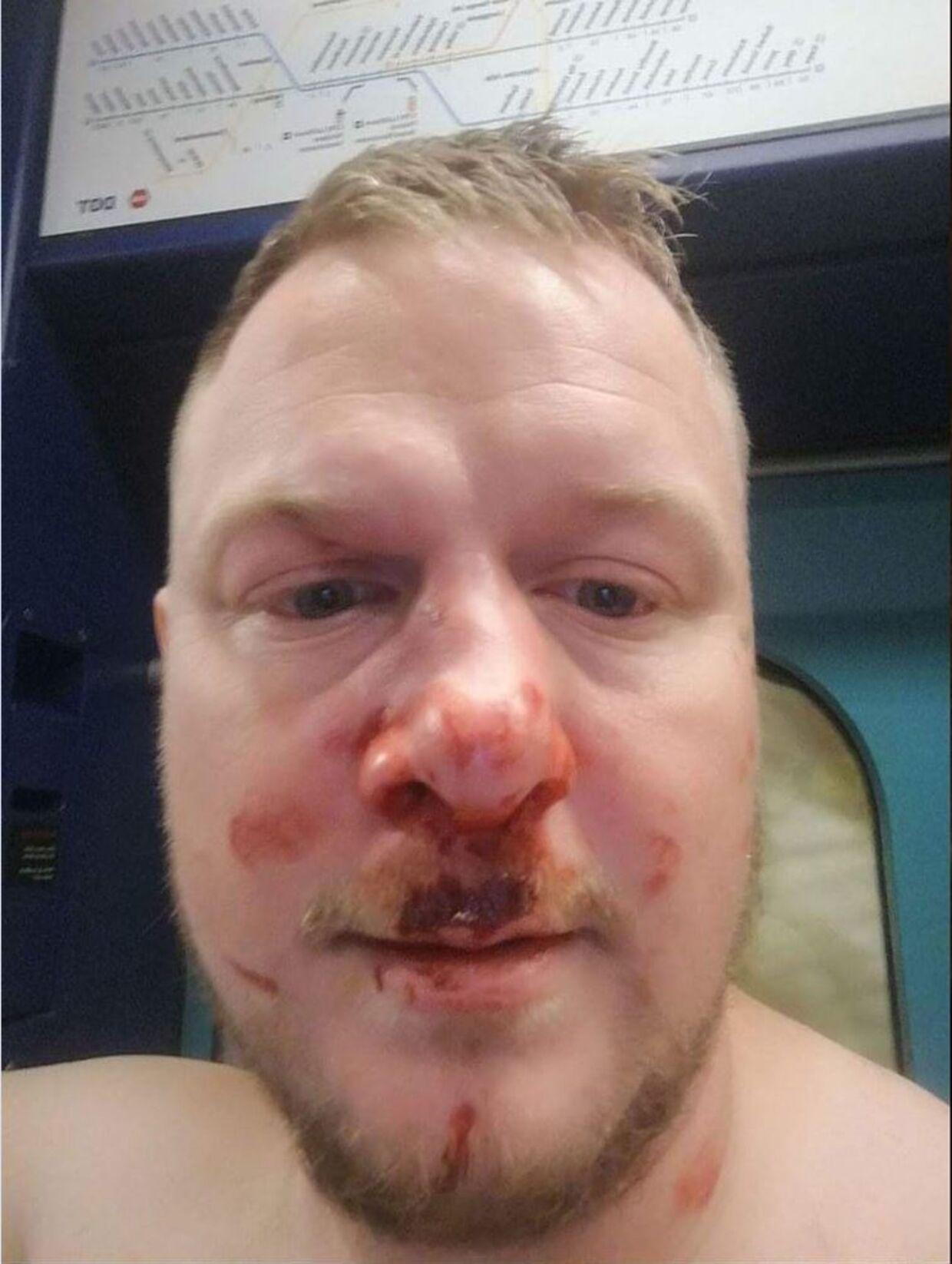 Søren Svendsen blev overfaldet efter kampen mellem FCK og Brøndby og delte dette billede på Facebook efterfølgende.