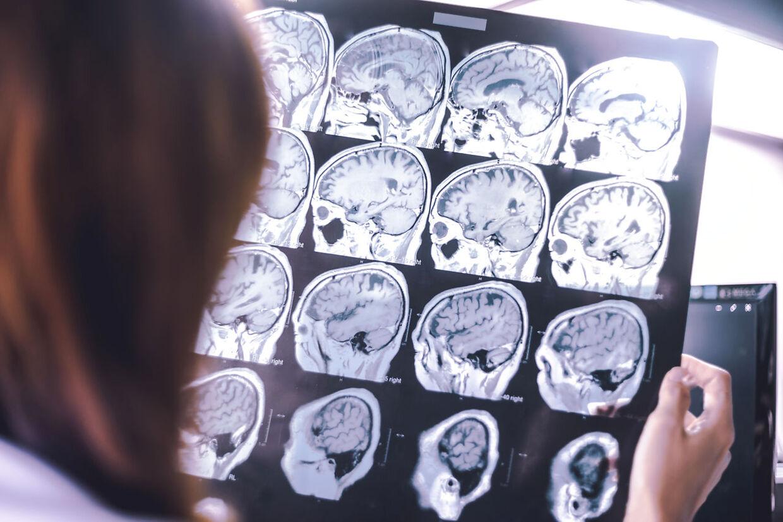 Demensforskere har længe haft en mistanke om, at forstyrret nattesøvn kunne øge risikoen for demens. Måske fordi hjernens »vaskemaskine« om natten forstyrres.