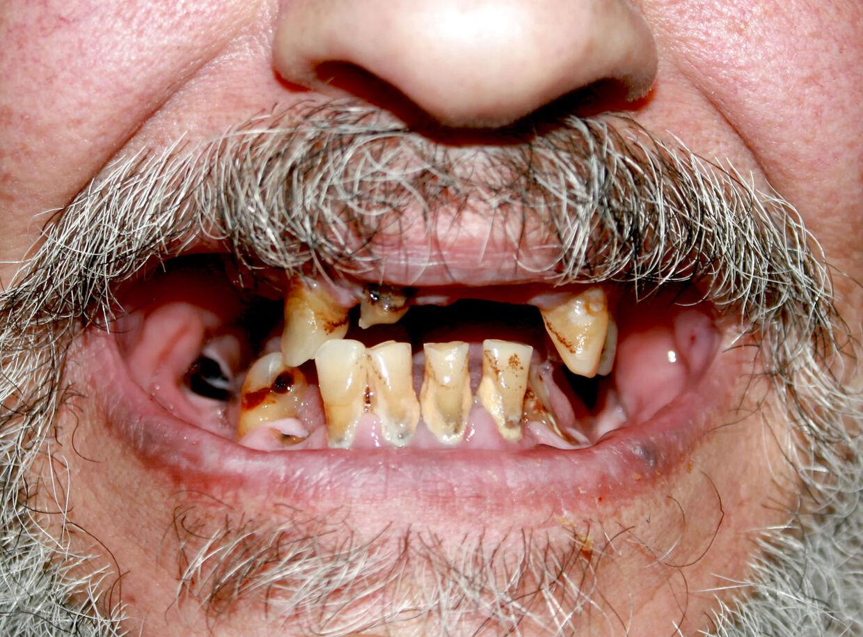 Når vi drømmer om at tabe tænderne, handler det som regel om forandringer i det vågne liv. (Modelfoto/Scanpix)