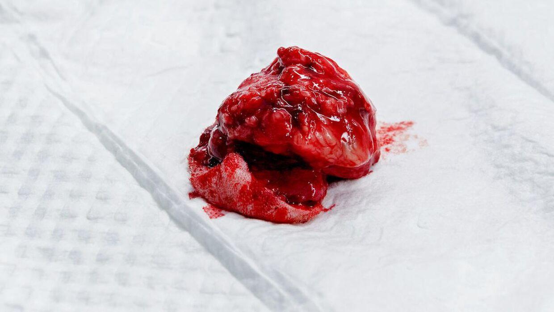 Julius' kræftknude, efter den er blevet opereret ud af den lille hundekrop.