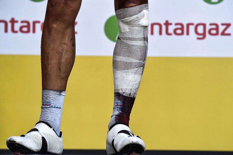 Philippe Gilbert blev 16. etapes mest angrebsivrige rytter. Måske mest på grund af, at han kom i mål med en brækket knæskal.