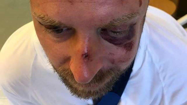 Sådan så Jacob ud efter angrebet, der fandt sted i en sydsvensk skov.