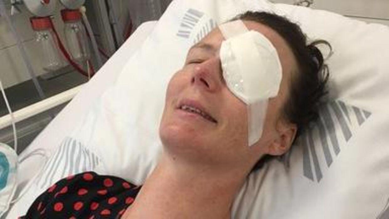 Lea endte med at få transplanteret sit øje for at blive amøbefri. Foto: Privat.