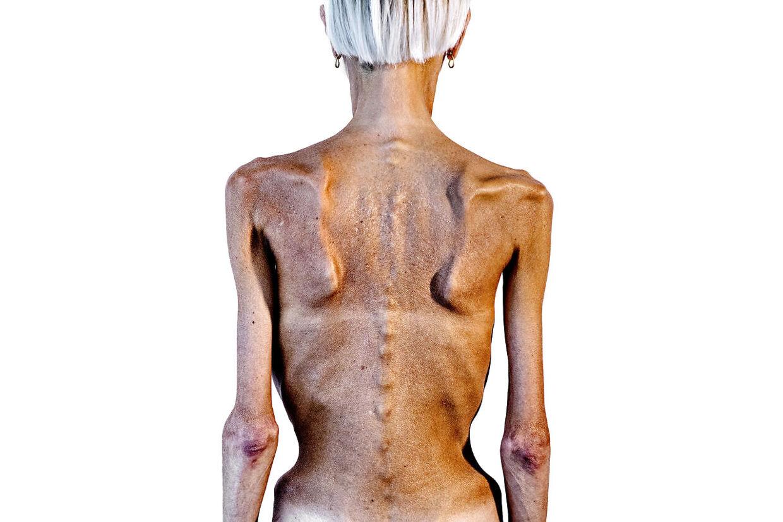 AnorekSigne med det borgerlige navn Signe Grønnebæk har lidt af en alvorlig spiseforstyrrelse i mere end 16 år. Hun har nu udgivet en bog om sit liv som spiseforstyrret.