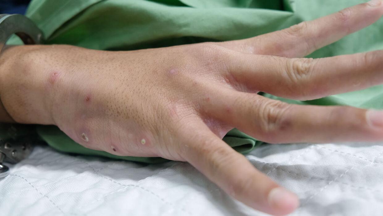 Arkivfoto. Fnat rammer især på steder som hånden og mellem fingrene.