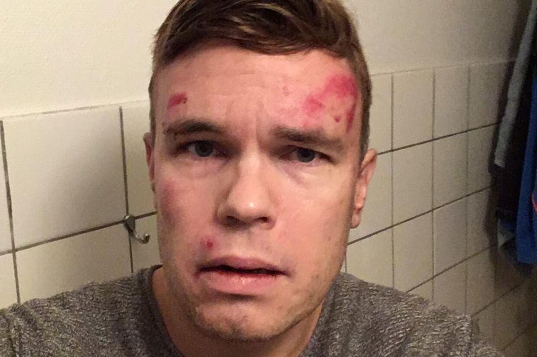 Jonas Sivkær Pettersen tog dette billede af sig selv kort tid efter at være blevet anholdt uden grund og løsladt igen af Københavns Politi.