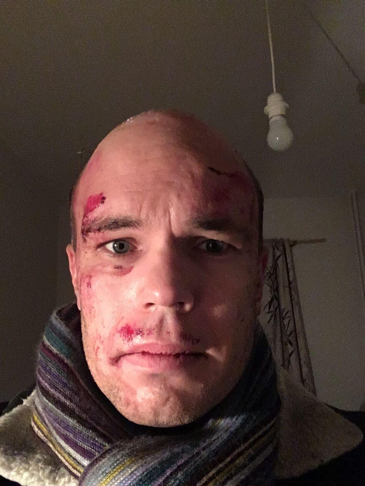 Jonas Sivkær Pettersen går til daglig med toupé, men den blev revet af under anholdelsen.