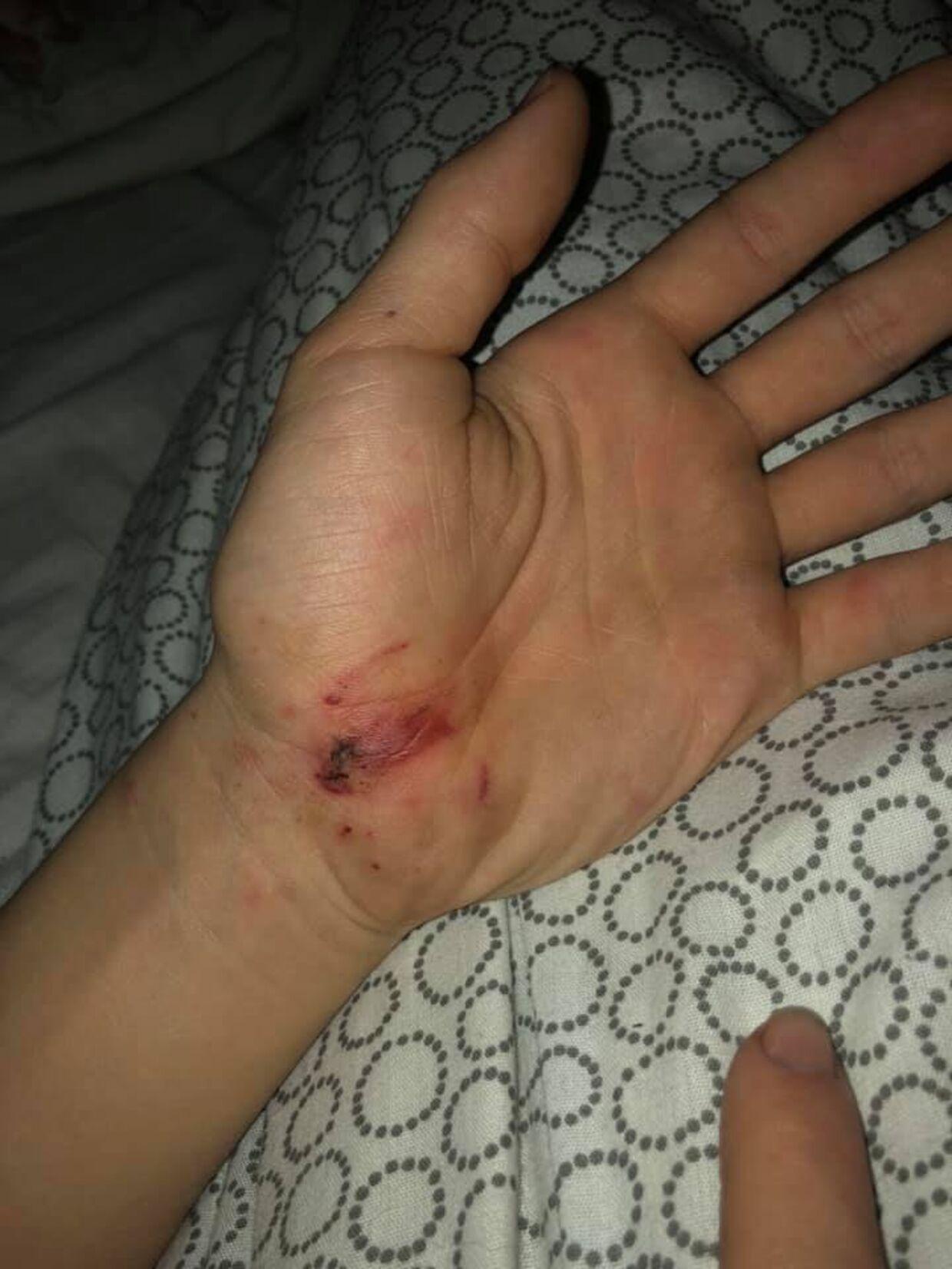 Markus greb om fyrværkeriet, da det sprang. Lægerne siger derfor, at han er utrolig heldig, at han ikke mistede sine fingre. Han har dog flere smertefulde blodvabler efter ulykken.