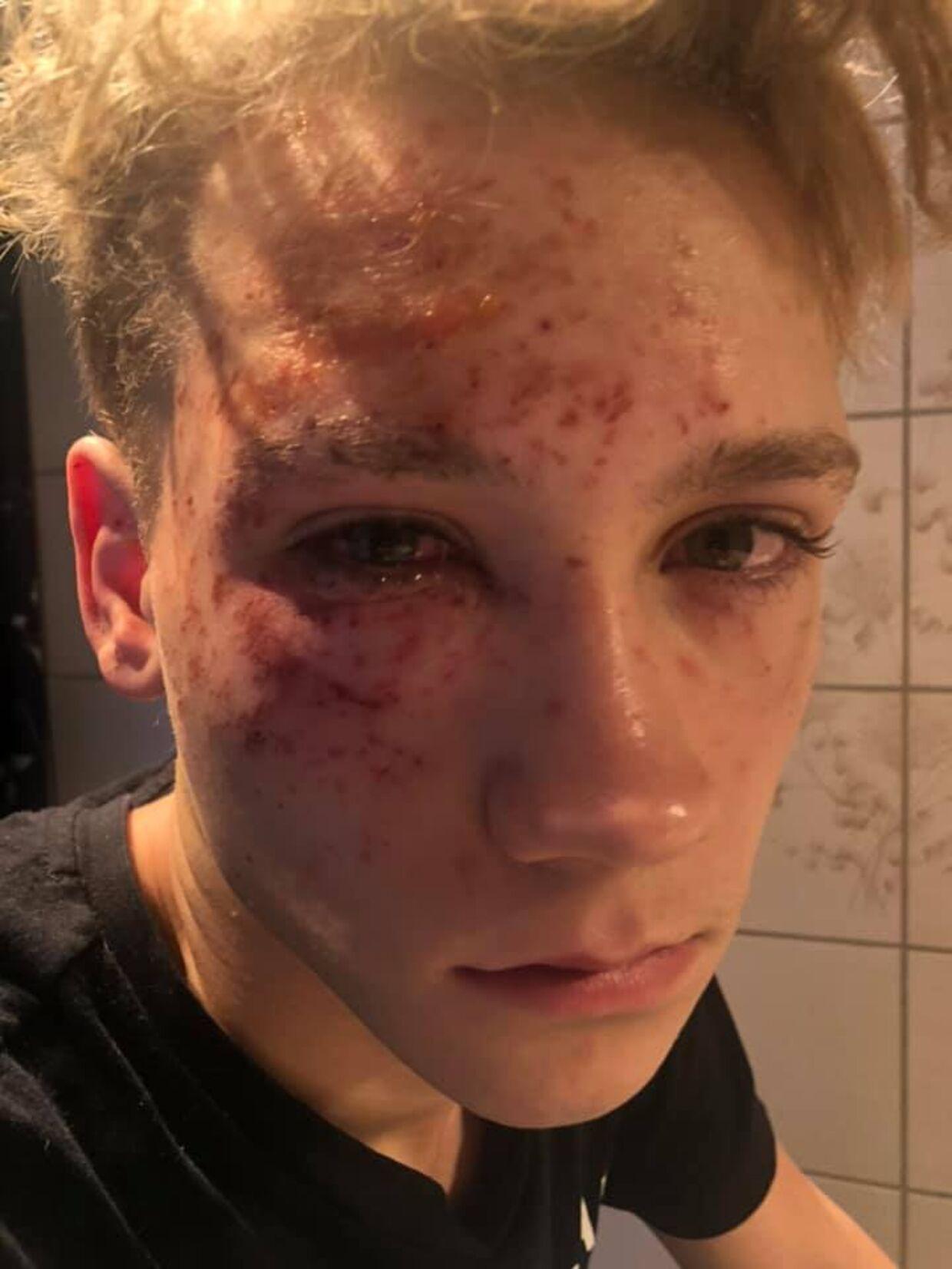 Mandag aften eksploderede et stykke fyrværkeri lige ved Markus ansigt. I dag siger han, at han aldrig vil tæt på fyrværkeri igen. Selvom han slap med mindre fysiske skader, fortæller hans mor, at han stadig er meget påvirket af ulykken mentalt.