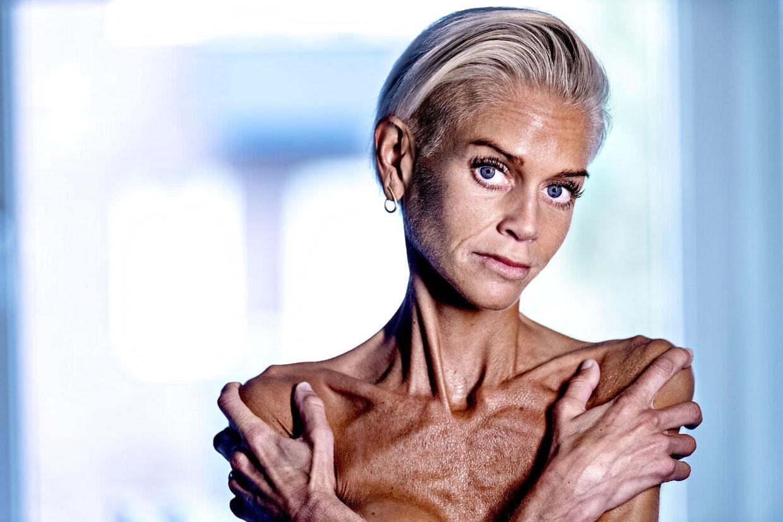 Husker du Signe Grønnebæk? I oktober skrev B.T. første gang om kvinden, der har levet med alvorlig anoreksi hele sit voksenliv. Nu er hun gået i behandling.