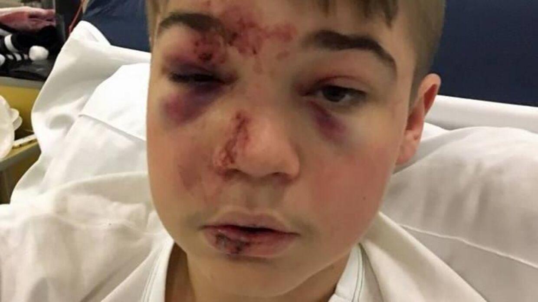 Sådan så Simon Jakobsens ansigt ud kort efter ulykken.