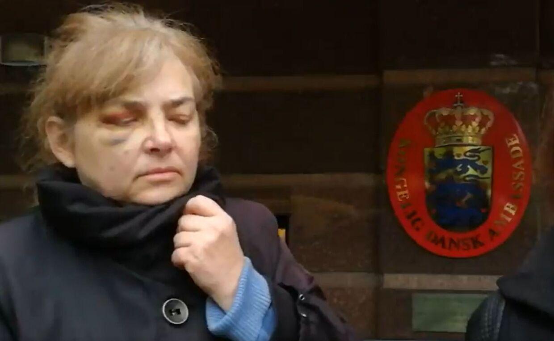 Anastacias mor fortæller, at hun fik et sæbeøje, da hendes barnebarn blev bortført.