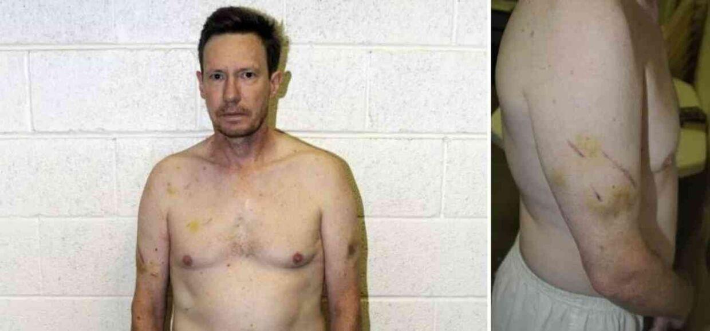 På sin krop havde Peter Chadwick tydelige blå mærker. Han forklarede politiet, at det var selvforsvar. Men mærkerne lignede nærmere, at en anden person havde udøvet selvforsvar mod ham. Foto: Newport Police Department