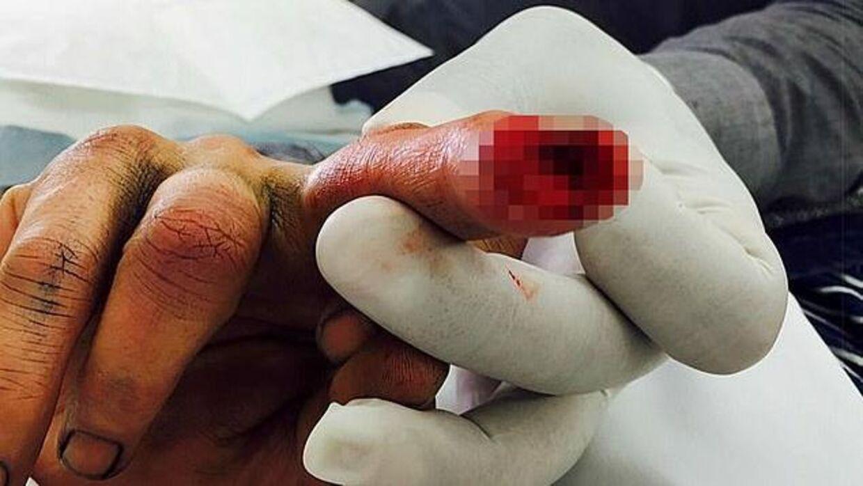 Johnny Depp var efter eget udsagn i livsfare efter sin fingerskade, fordi han tre gange fik MRSA. (Foto: Fairfax Court)