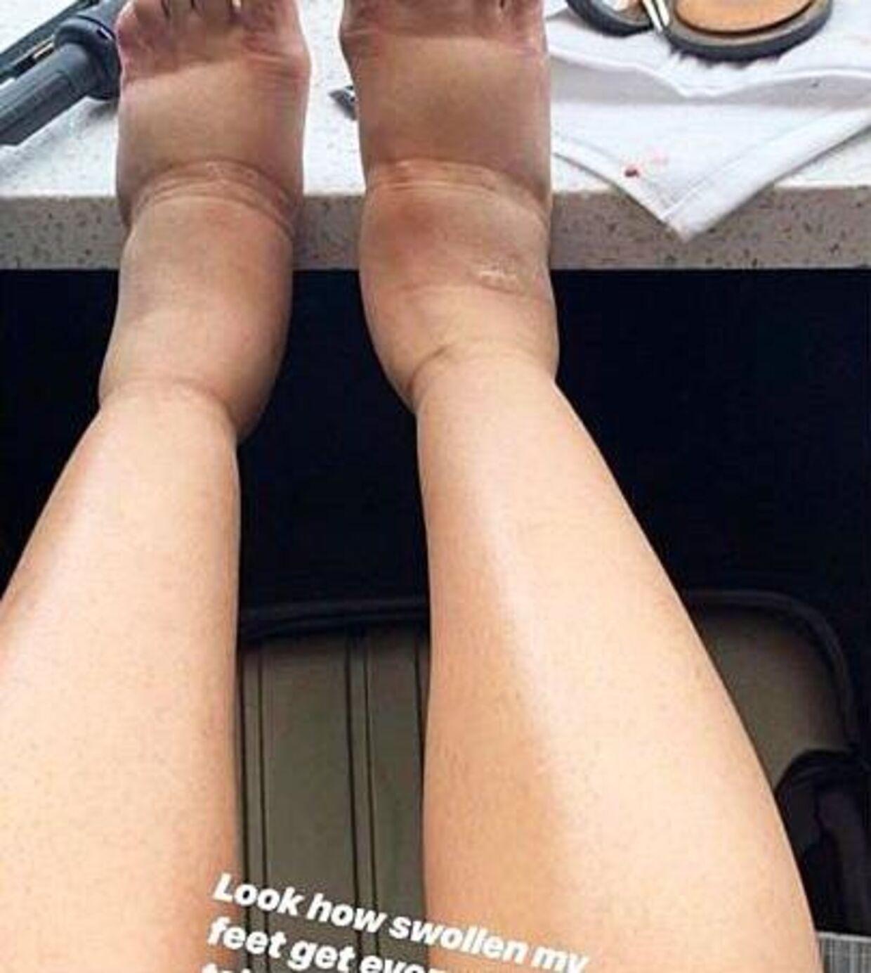 Her ses Cardi Bs fødder.