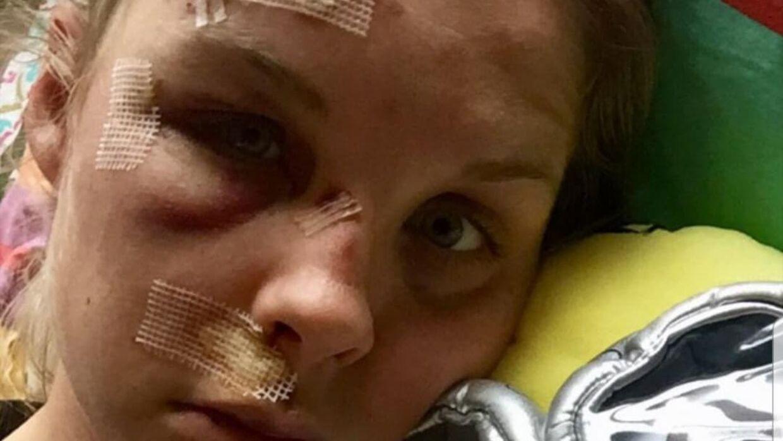 Julie Leth delte et billede af sit ansigt efter det volsomme styrt.