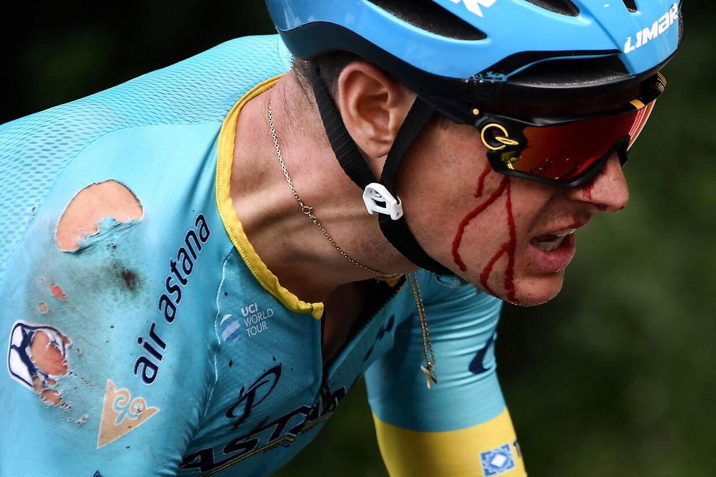 Blodet løb ned af Jakob Fuglsang under de sidste kilometer af årets første Tour de France-etape.