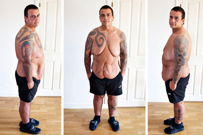 Jesper Skovshoved tabte 140 kilo, og drømmer stadigvæk om, at få fjernet løst hud fra kroppen.