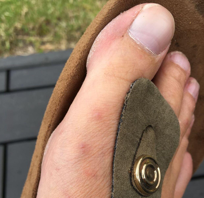 Anette Damgaards fod, hvor de tre røde mærker er fra væggelusene. Mærkerne er falmet en del siden familiens ferie, forklarer hun. Privatfoto.
