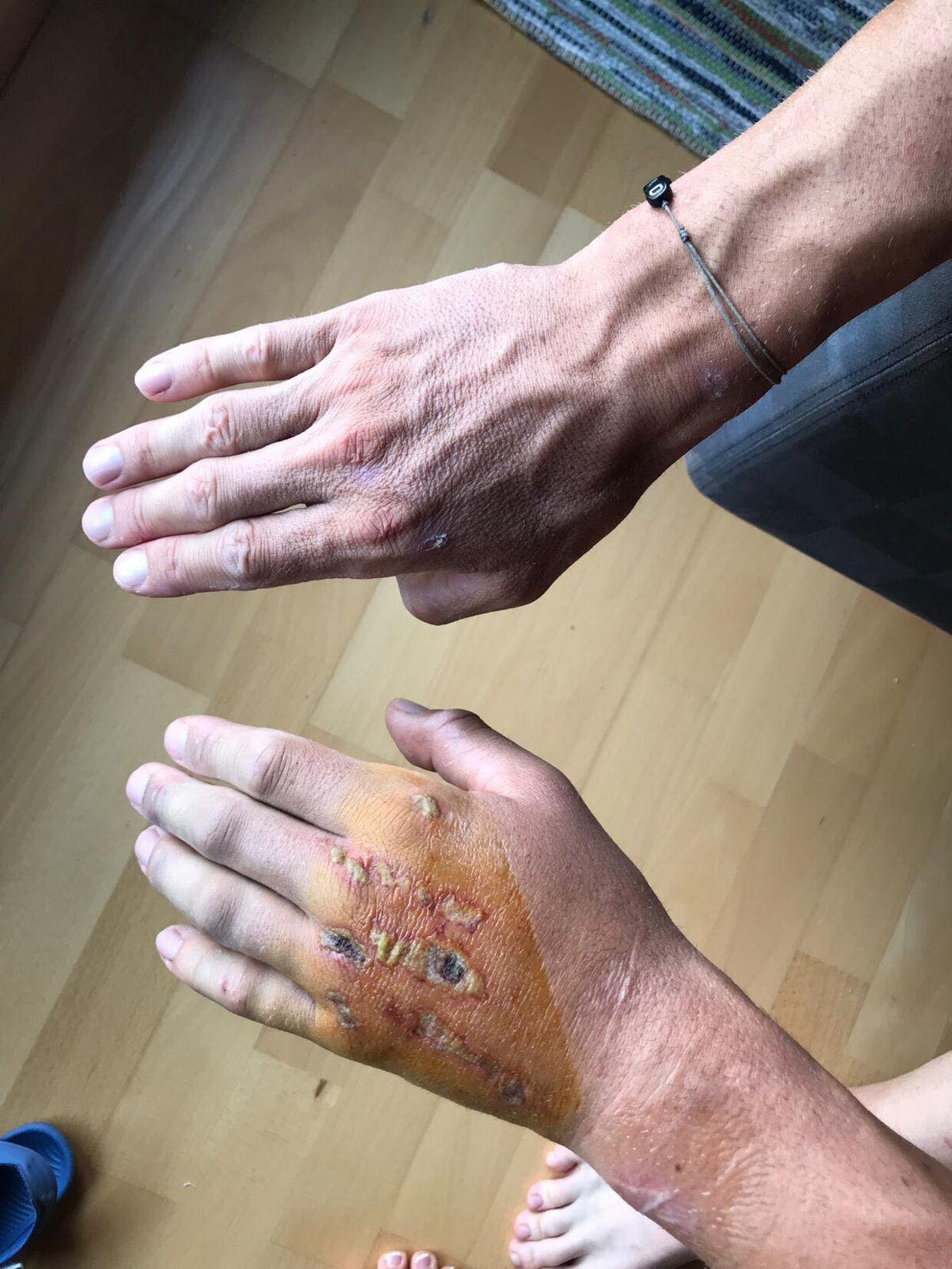 Sådan så Jakob Fuglsangs forslåede hånd ud fredag den 26. juli. Det var, tre dage efter han styrtede.