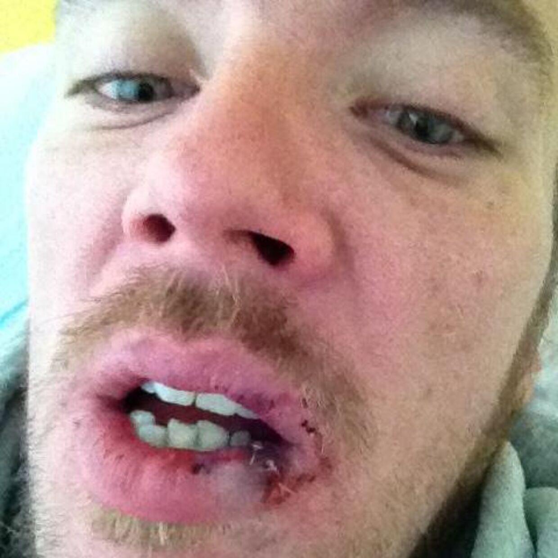 Da Nicolaj Odgaard blev overfaldet i 2002, gik det hårdt ud over hans tænder. Overfaldet skulle vise sig ikke være det sidste af sin slags.