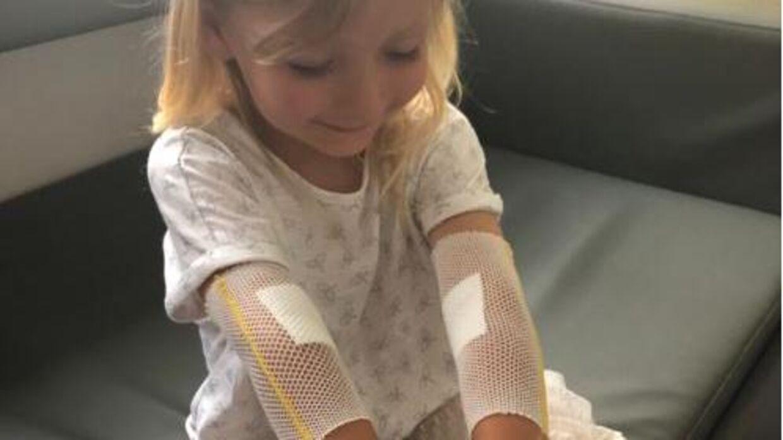 Belma Topalovic, der er mor til treårige Mia Nielsen, opfordrer folk til at gå til lægen med deres børn, hvis de er i tvivl.