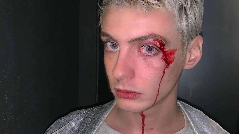 Sigmund Trondheim fik flækket et øjenbryn ved overfaldet, men siger, at det psykiske ar er de værste. (Privatfoto)