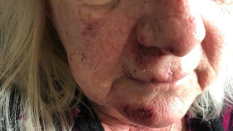 Skaderne på 63-årige Marianne er efter overfaldet et sår på næseryggen, sår på overlæben og indersiden af læben, hudafskrabninger og en løs fortand.