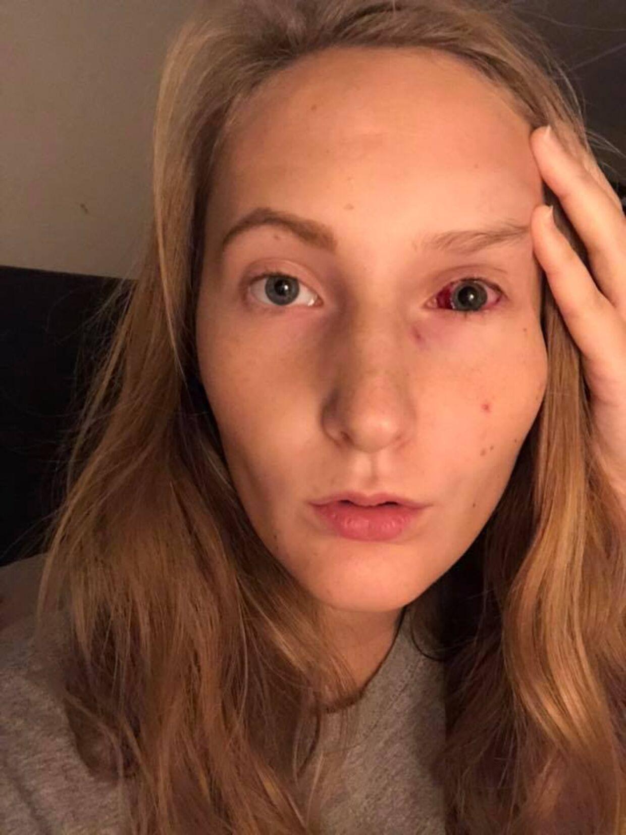 Christina Malmers venstre øje drejer sig ikke længere ind mod næsen. Hun kan nu se ligeud - naturligvis til stor glæde for den 20-årige. Privatfoto