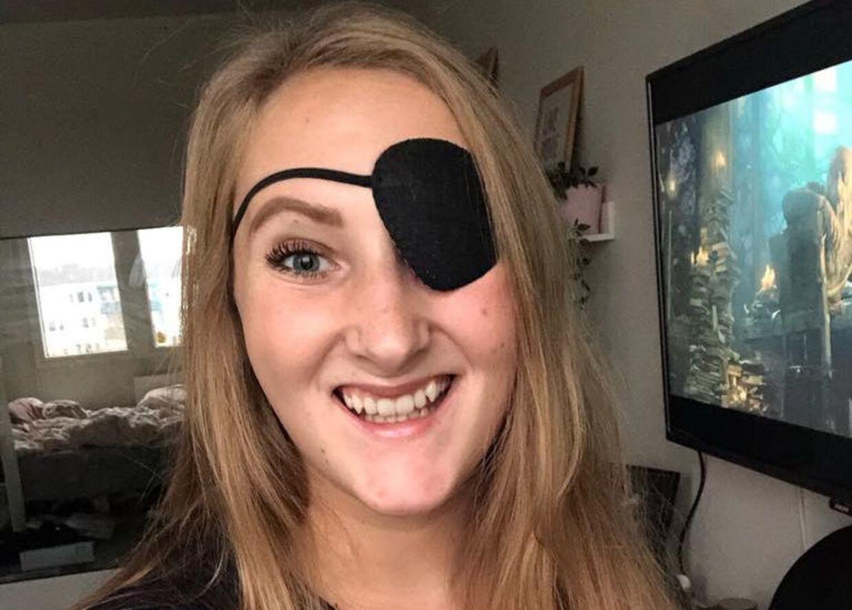 Christina Malmer har i fem år vænnet sig til at gå med klap for venstre øje. Privatfoto