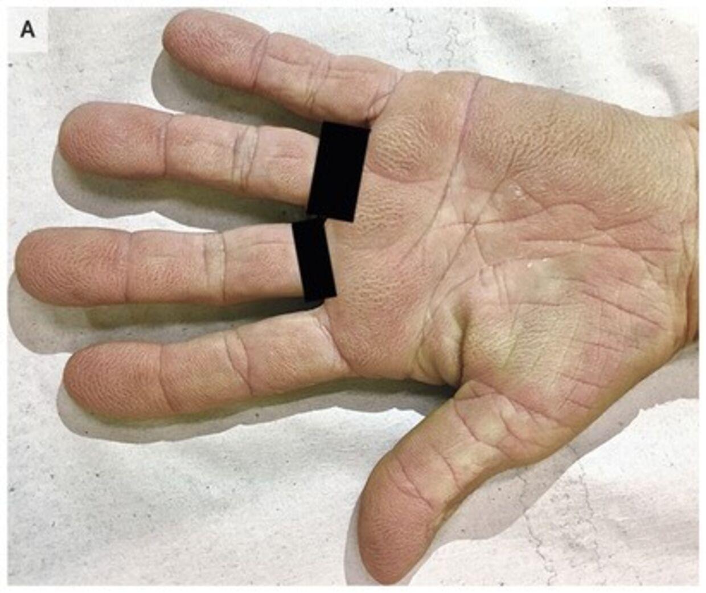 På billedet kan du se, hvordan kvindens hånd er præget af helt tydelige mønstrer.