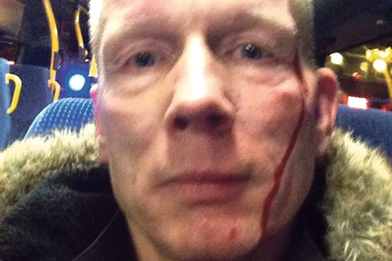 - Jeg vil bare gerne have, de bliver fanget, så jeg håber bestemt, at det er den rigtige mand, de har fat i, siger Bent Sandberg, der blev overfaldet i linje 6A i København natten til søndag.