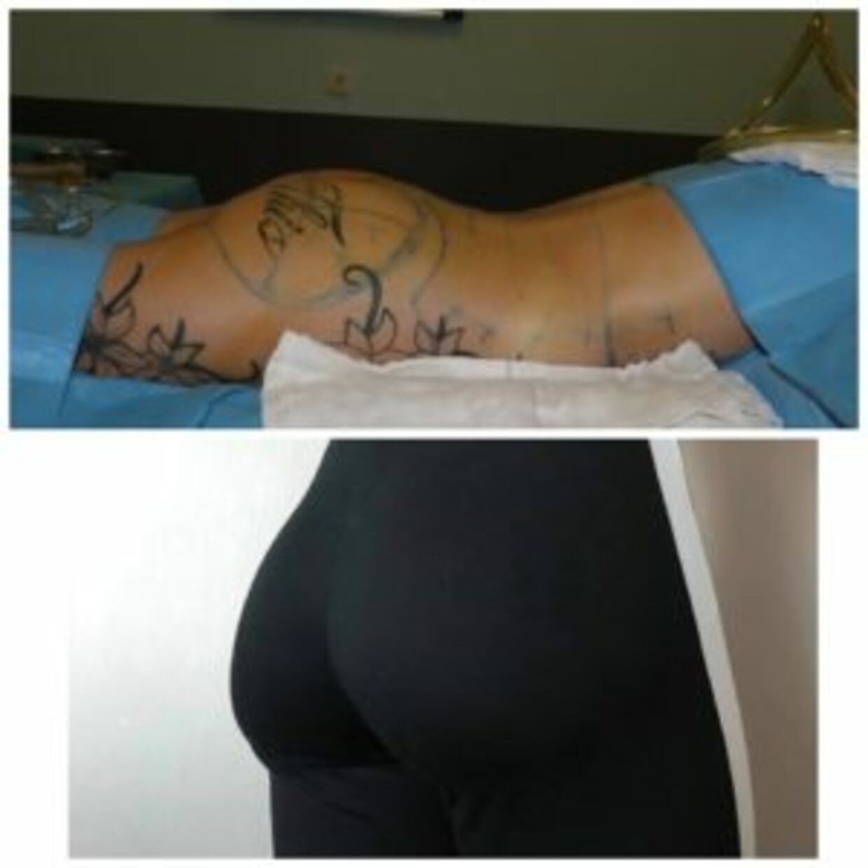 Før og efter Sashas BBL-operation. Foto: Privat