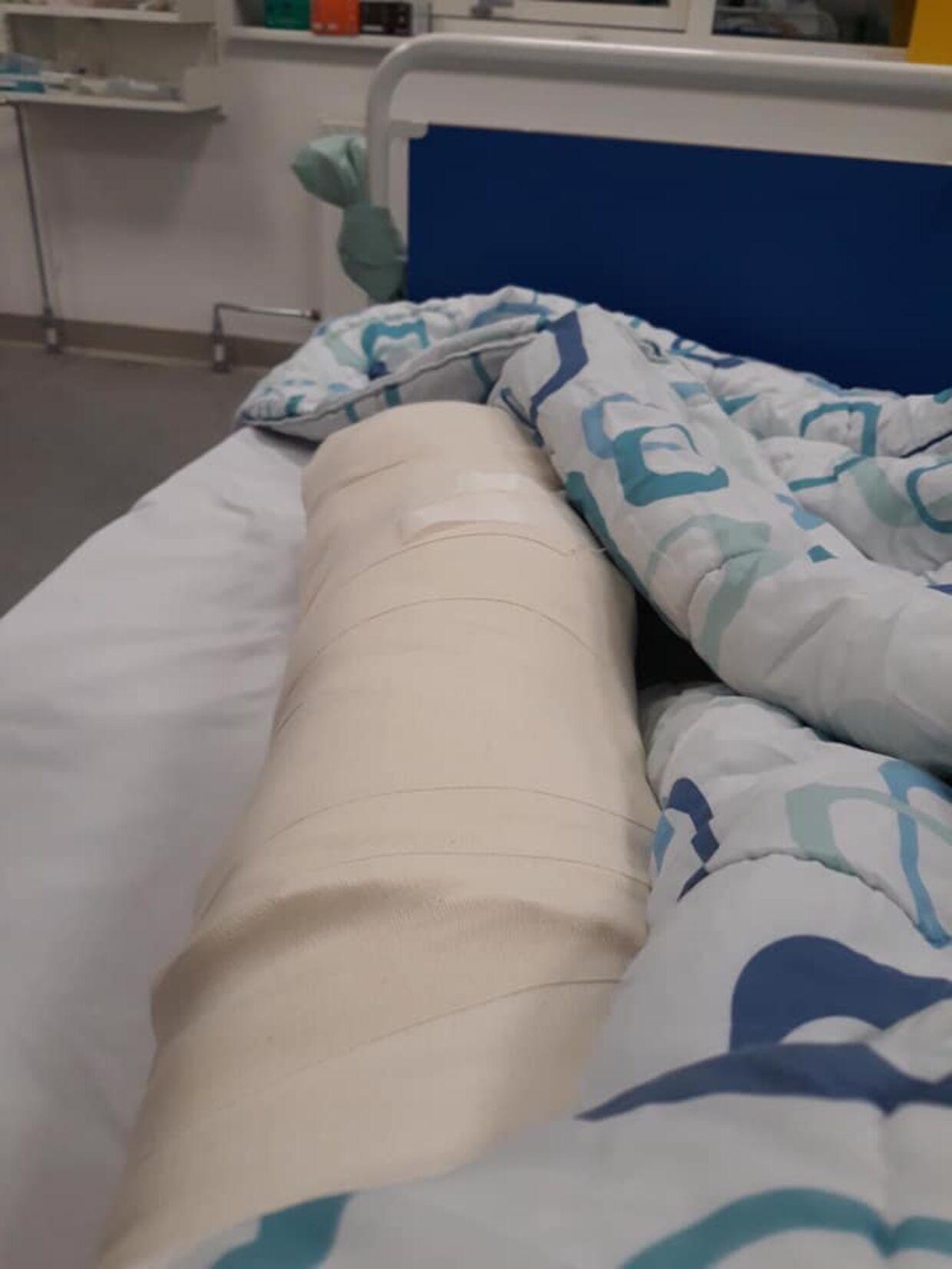 Resten af benet efter operationen.