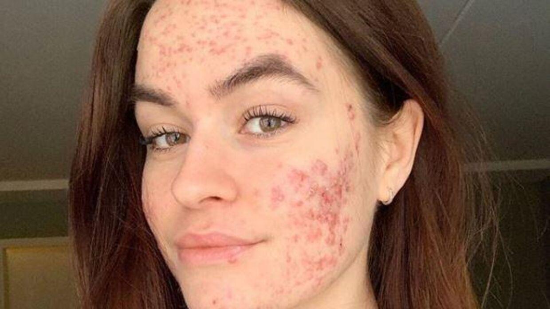Sofia Grahn isolerede sig i skam over sin akne. Men nu står hun stolt frem og står ved sit udseende. (Foto: Sofia Grahn/Instagram)