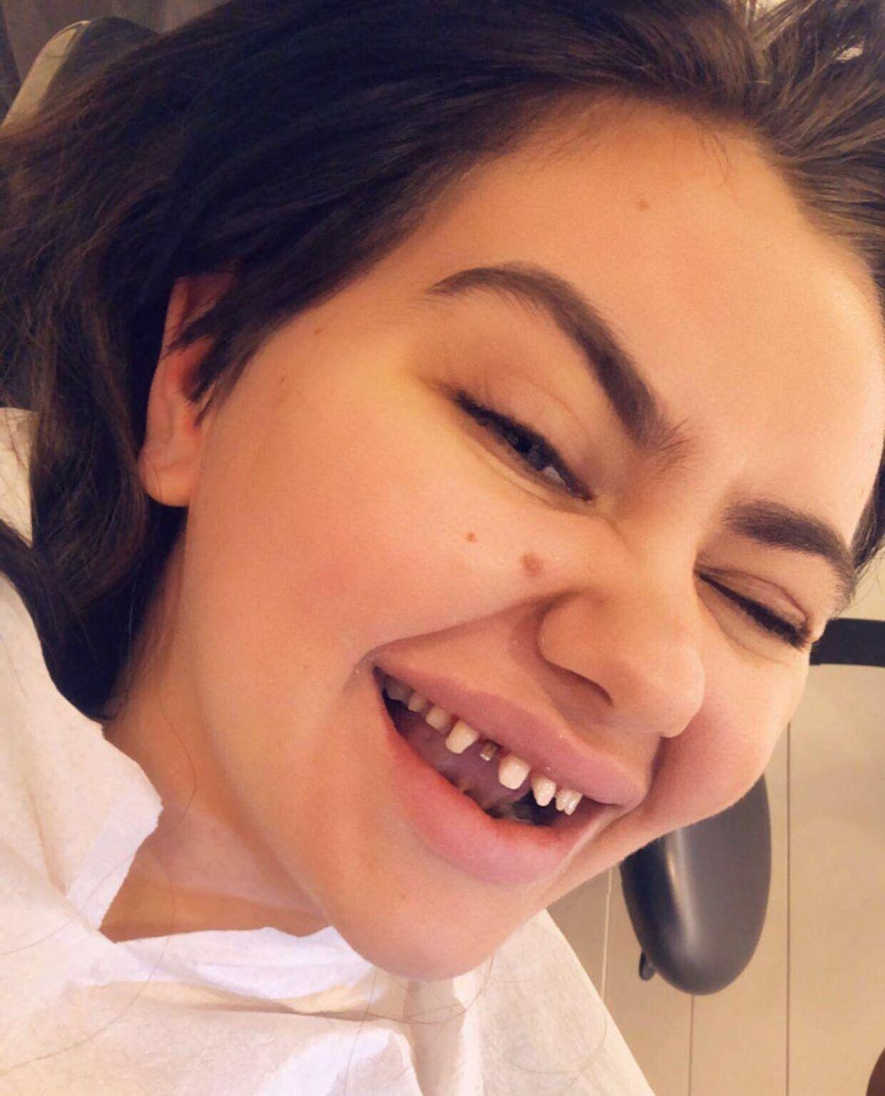 Fie Laursen bliver kaldt en dårlig rollemodel flere steder, efter hun blandt andet har reklamere for at få filet sine tænder ned og sat falske på. (Privatfoto)