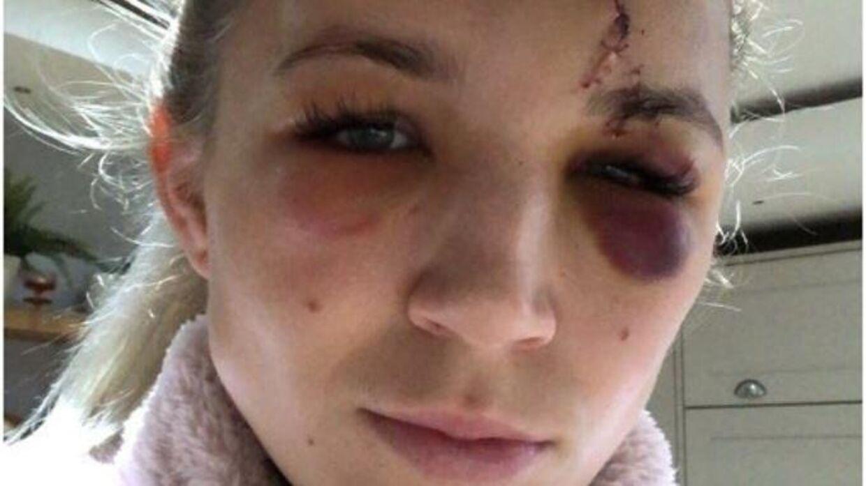 Frances Kitching kom slemt til skade under en træning