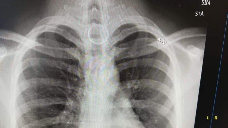 Røntgenbillede af kapslen.
